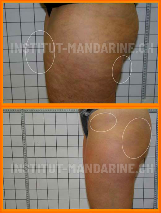 traitement-cellulite-jambe-