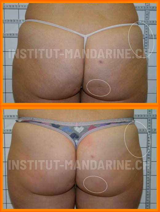 traitement-cellulite-fesse-